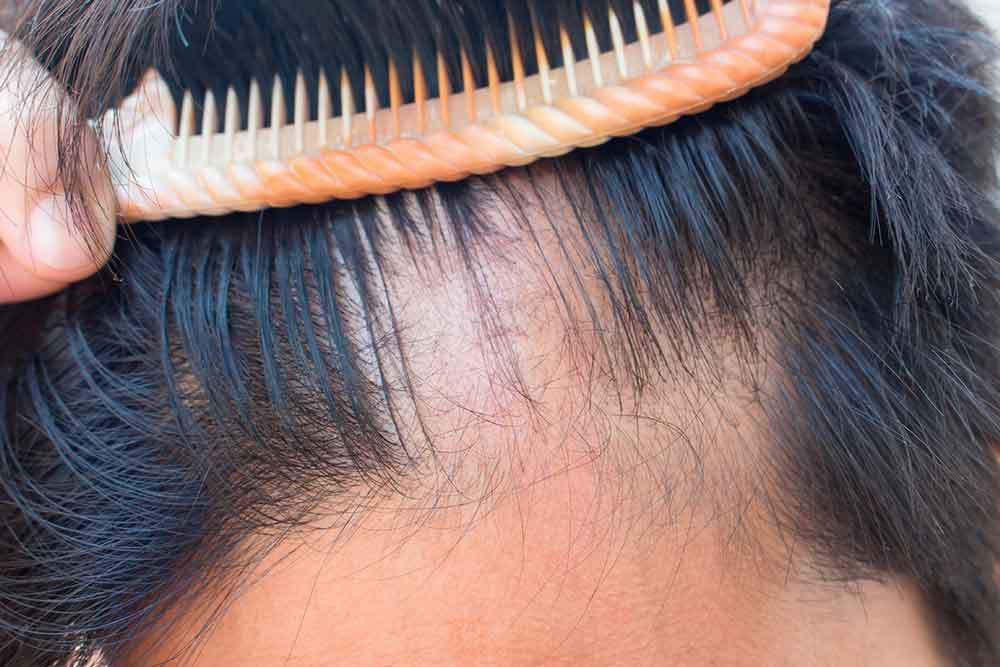Trichotillomania (hair pulling disorder) The causes and symptoms...